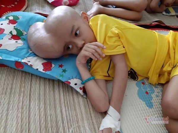 Căn bệnh ung thư não đã lấy đi niềm vui của Sĩ khi ngày ngày con chỉ có thể nằm một chỗ trên giường bệnh.